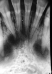 absceso radicular