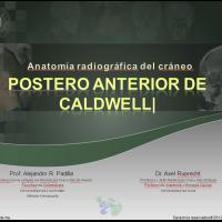 Anatomía radiográfica en Postero-anterior de Caldwell