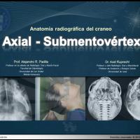 Anatomía radiográfica en vista Axial - Submentovértex