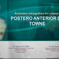 Anatomía radiográfica en vista Posteroanterior de Towne