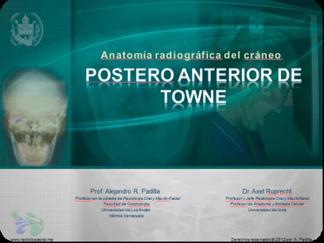 Anatomía radiográfica en vista Posteroanterior de Towne |
