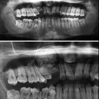 Gran odontoma en maxilar superior.