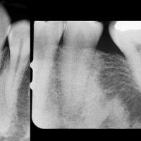 Osteoesclerosis idiopática