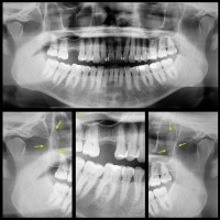Hiperplasia bilateral de la apósifis coronoides