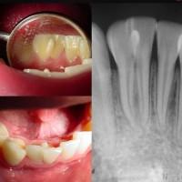 Talón cuspideo y fusión dental