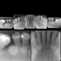 Torus mandibular bilateral