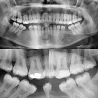Taurodontismo en molares