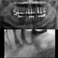 Osteoesclerosis - resto radicular