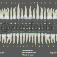 Nomenclatura dientes permanentes