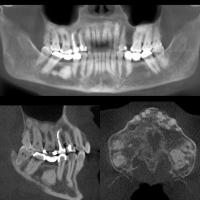 Displasia cemento ósea florida