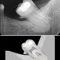 Displasia cemento ósea periapical