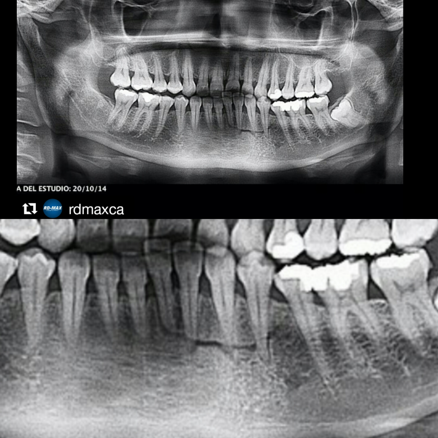 Fractura dentoalveolar |