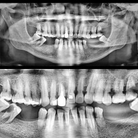 Caries cervical rampante