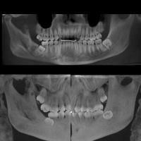 Hiperplasia condilar -Hipoplasia coronoidea