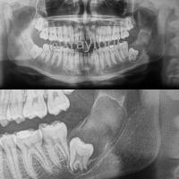 Tumor odontogénico queratoquistico